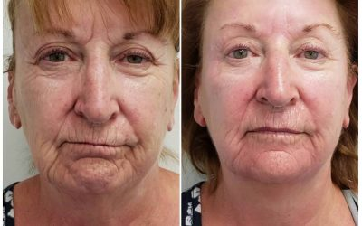 NEW Radiofrequency and Microneedling Treatment in Milton Keynes